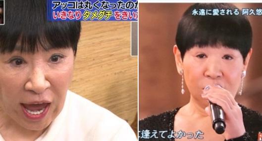 和田アキ子 眼瞼下垂再手術した病院は東京のどこ?顔や目が